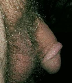 Натянул кожу на члене фото — 1